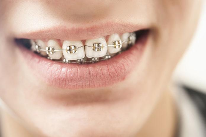 Kiedy udać się na konsultację ortodontyczną